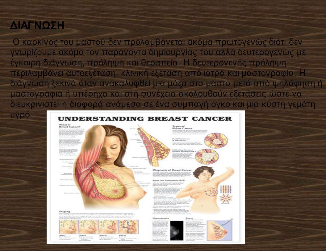 Ο καρκίνος του μαστού δεν προλαμβάνεται ακόμα πρωτογενώς διότι δεν γνωρίζουμε ακόμα τον παράγοντα δημιουργίας του αλλά δευτερογενώς με έγκαιρη διάγνωσ