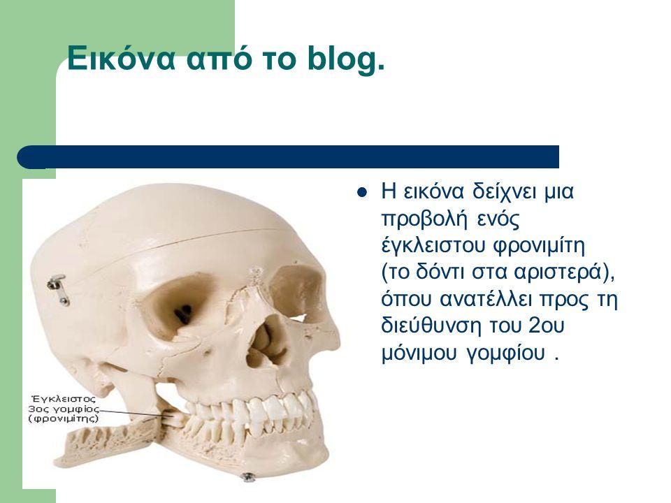 Εικόνα από το blog. Η εικόνα δείχνει μια προβολή ενός έγκλειστου φρονιμίτη (το δόντι στα αριστερά), όπου ανατέλλει προς τη διεύθυνση του 2ου μόνιμου γ