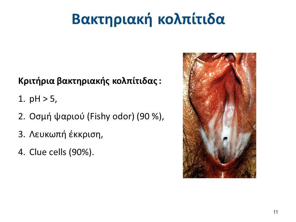 Βακτηριακή κολπίτιδα Κριτήρια βακτηριακής κολπίτιδας : 1.pH > 5, 2.Οσμή ψαριού (Fishy odor) (90 %), 3.Λευκωπή έκκριση, 4.Clue cells (90%). 11