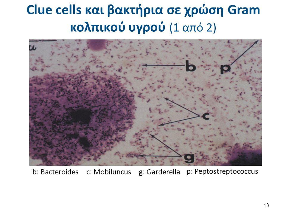 Clue cells και βακτήρια σε χρώση Gram κολπικού υγρού (1 από 2) b: Bacteroidesc: Mobiluncusg: Garderella p: Peptostreptococcus 13