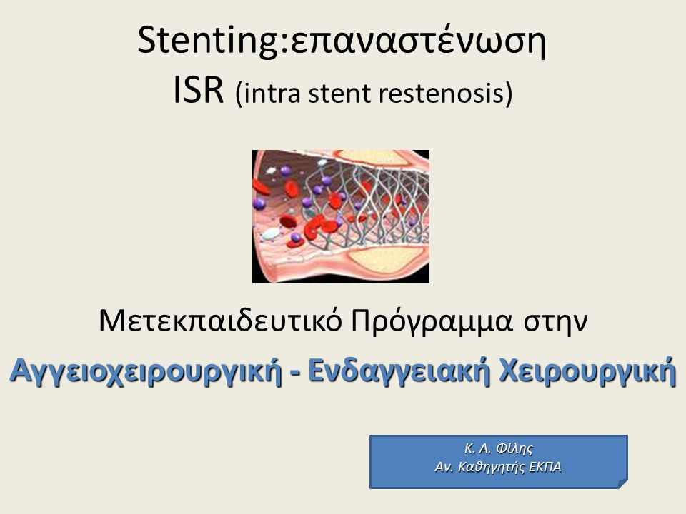 Definitions ISR can be defined clinically or angiographically.