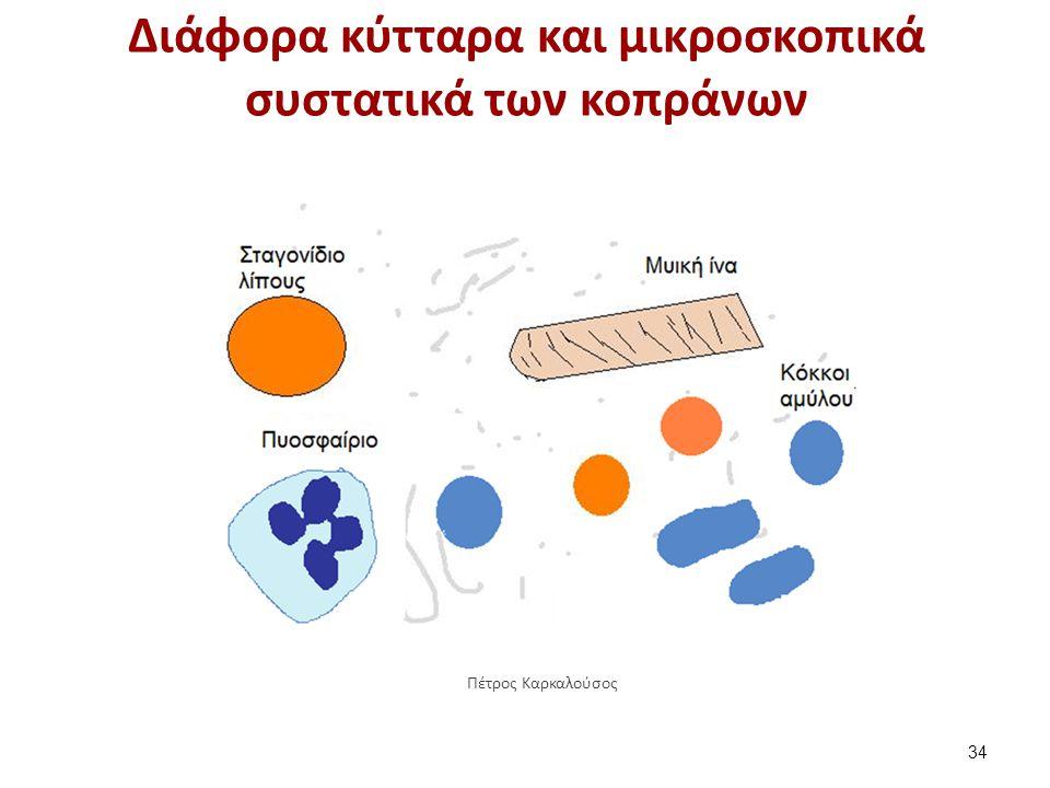 Διάφορα κύτταρα και μικροσκοπικά συστατικά των κοπράνων 34 Πέτρος Καρκαλούσος