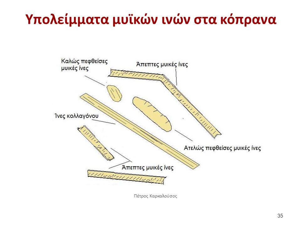 Υπολείμματα μυϊκών ινών στα κόπρανα 35 Πέτρος Καρκαλούσος