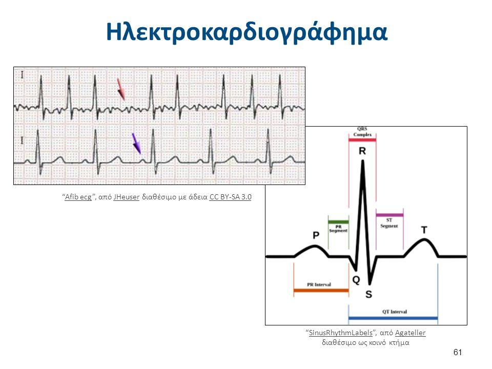 """Ηλεκτροκαρδιογράφημα """"Afib ecg"""", από JHeuser διαθέσιμο με άδεια CC BY-SA 3.0Afib ecgJHeuserCC BY-SA 3.0 """"SinusRhythmLabels"""", από Agateller διαθέσιμο ω"""