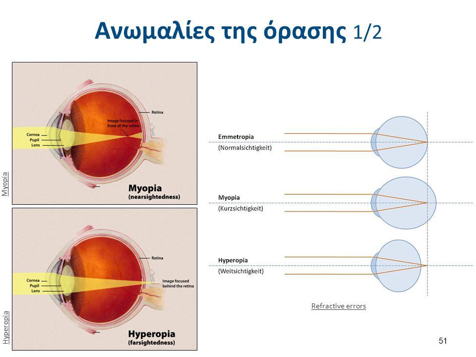 Ανωμαλίες της όρασης 1/2 Refractive errors Hyperopia Myopia 51