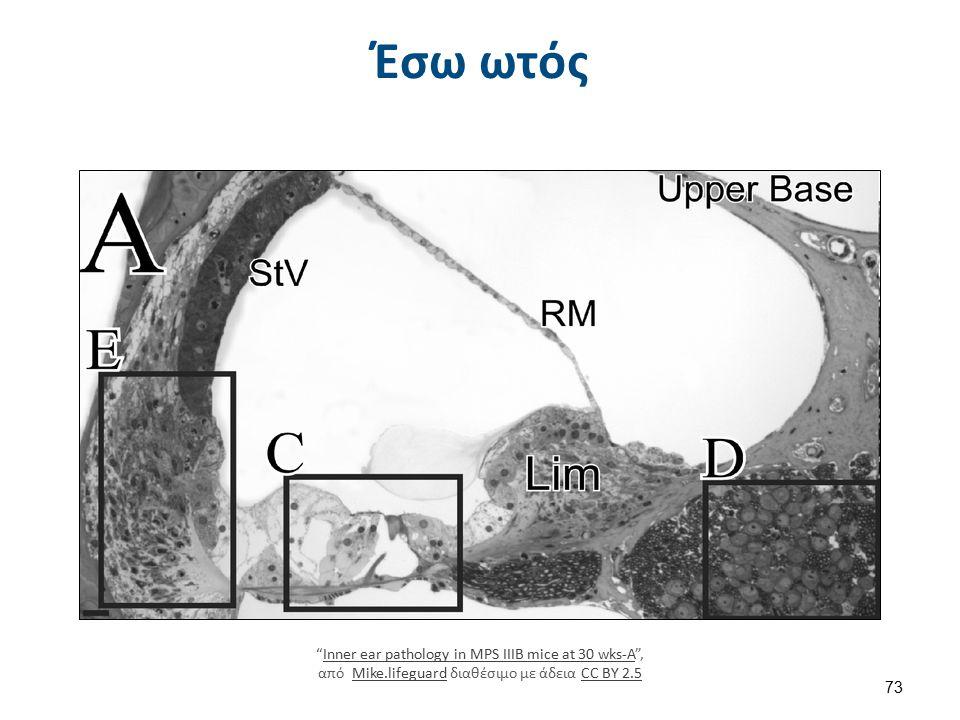 Έσω ωτός Inner ear pathology in MPS IIIB mice at 30 wks-A , από Mike.lifeguard διαθέσιμο με άδεια CC BY 2.5Inner ear pathology in MPS IIIB mice at 30 wks-AMike.lifeguardCC BY 2.5 73