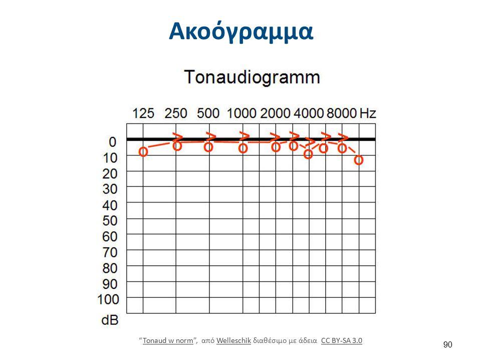 Ακοόγραμμα Tonaud w norm , από Welleschik διαθέσιμο με άδεια CC BY-SA 3.0Tonaud w normWelleschikCC BY-SA 3.0 90