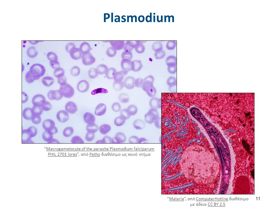"Plasmodium 11 ""Malaria"", από ComputerHotline διαθέσιμο με άδεια CC BY 2.5MalariaComputerHotlineCC BY 2.5 ""Macrogametocyte of the parasite Plasmodium f"