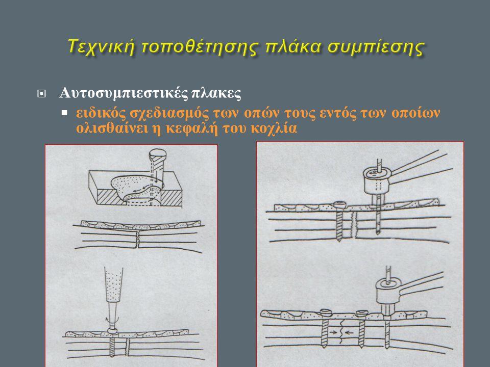  Αυτοσυμπιεστικές πλακες  ειδικός σχεδιασμός των οπών τους εντός των οποίων ολισθαίνει η κεφαλή του κοχλία