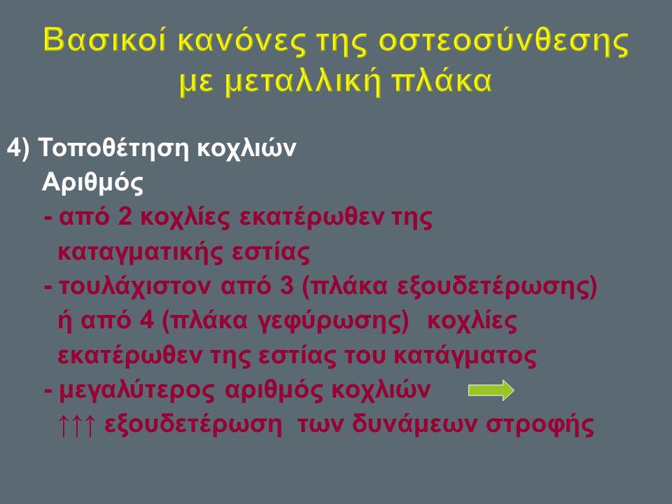 4) Τοποθέτηση κοχλιών Αριθμός - από 2 κοχλίες εκατέρωθεν της καταγματικής εστίας - τουλάχιστον από 3 ( πλάκα εξουδετέρωσης ) ή από 4 ( πλάκα γεφύρωσης ) κοχλίες εκατέρωθεν της εστίας του κατάγματος - μεγαλύτερος αριθμός κοχλιών ↑↑↑ εξουδετέρωση των δυνάμεων στροφής