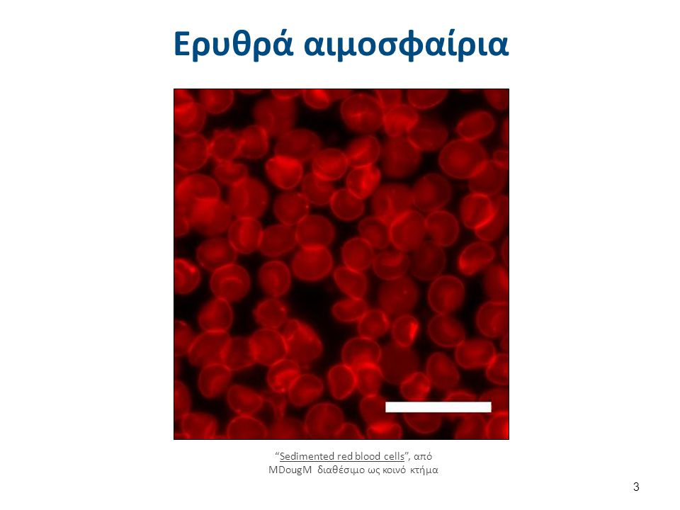 Δομή ερυθροκυττάρου 2/3 Το σχήμα του ερυθροκυττάρου θεωρείται σχήμα ισορροπίας, πράγμα που τα ερυθρά το εμφανίζουν όταν βρίσκονται εντός του πλάσματος.