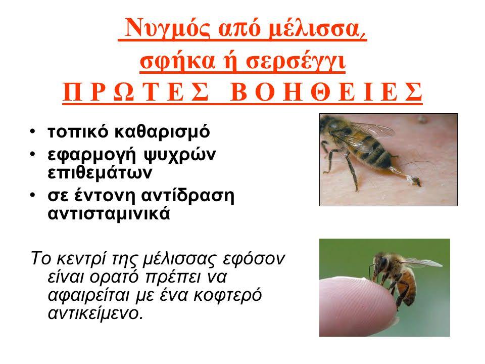 Νυγμός α π ό μέλισσα, σφήκα ή σερσέγγι Π Ρ Ω Τ Ε Σ Β Ο Η Θ Ε Ι Ε Σ τοπικό καθαρισμό εφαρμογή ψυχρών επιθεμάτων σε έντονη αντίδραση αντισταμινικά Το κε