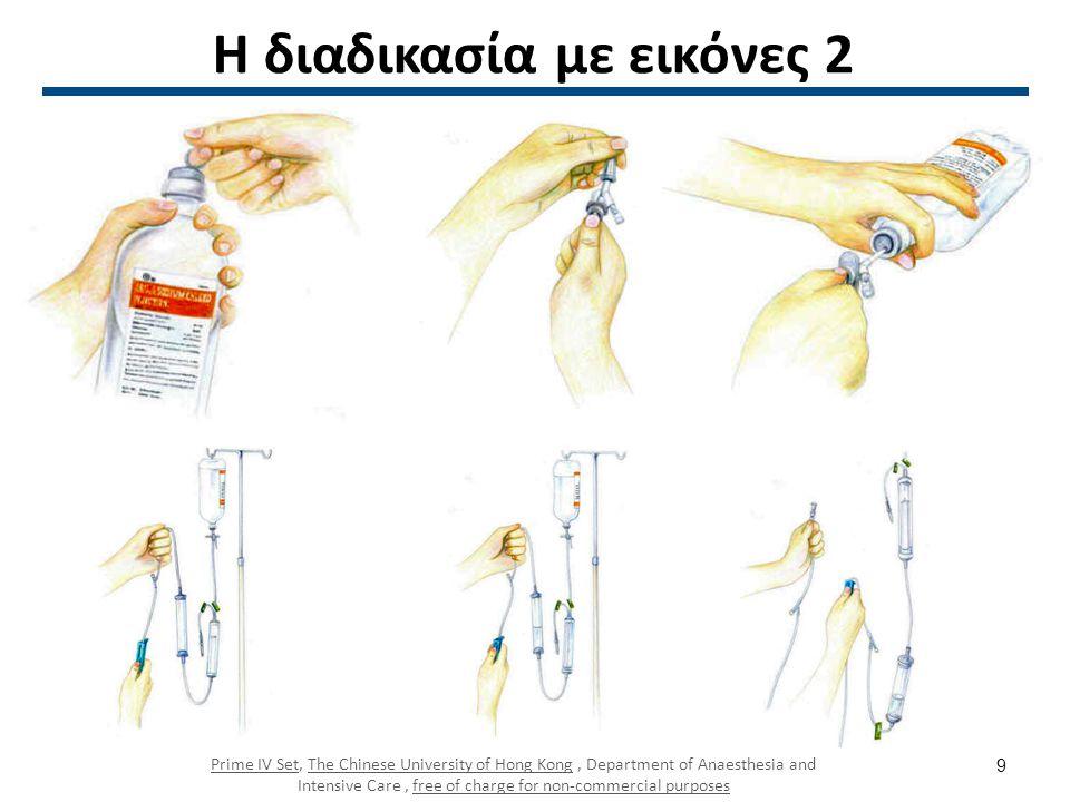 Η διαδικασία με εικόνες 2 Prime IV SetPrime IV Set, The Chinese University of Hong Kong, Department of Anaesthesia and Intensive Care, free of charge