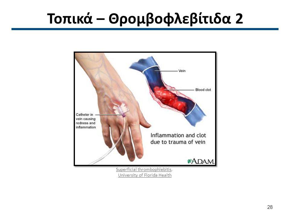 Τοπικά – Θρομβοφλεβίτιδα 2 Superficial thrombophlebitisSuperficial thrombophlebitis, University of Florida Health 28