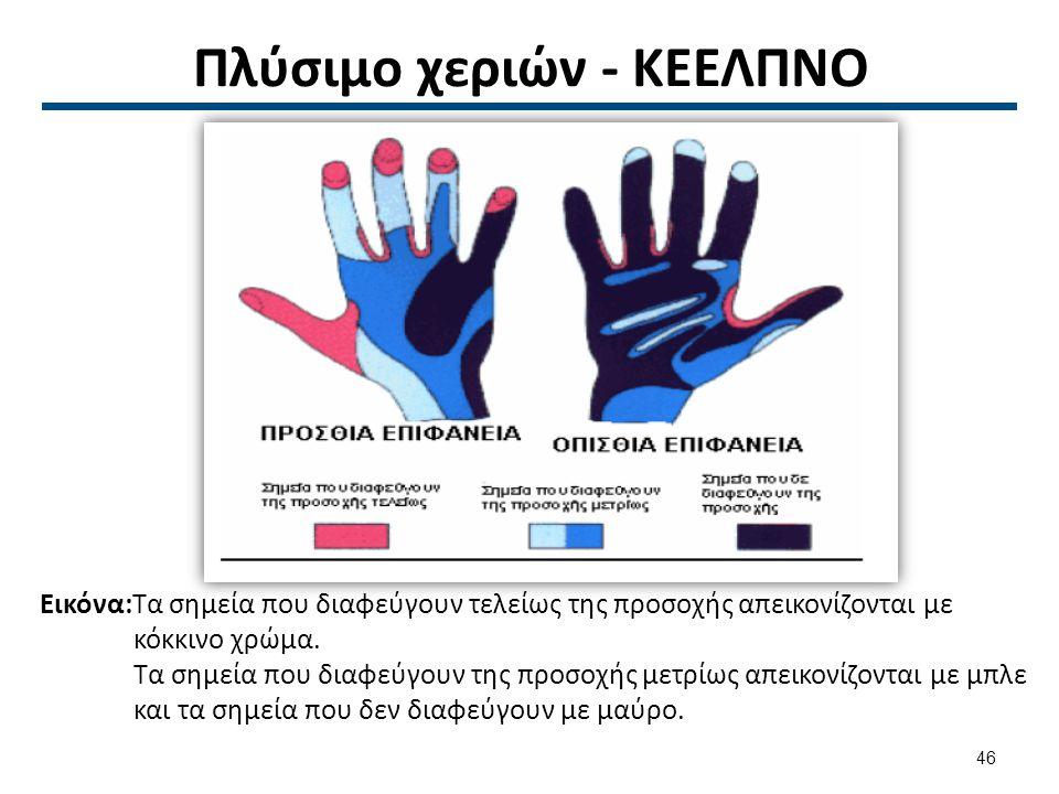 Πλύσιμο χεριών - ΚΕΕΛΠΝΟ Εικόνα:Τα σημεία που διαφεύγουν τελείως της προσοχής απεικονίζονται με κόκκινο χρώμα.