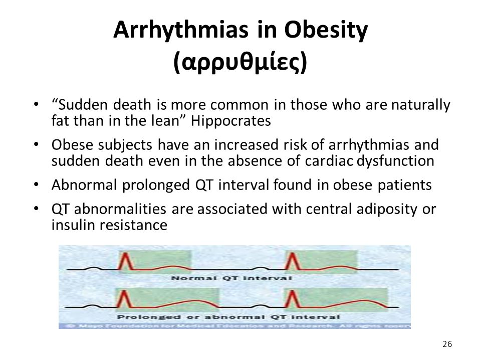 "Arrhythmias in Obesity (αρρυθμίες) ""Sudden death is more common in those who are naturally fat than in the lean"" Hippocrates Obese subjects have an in"