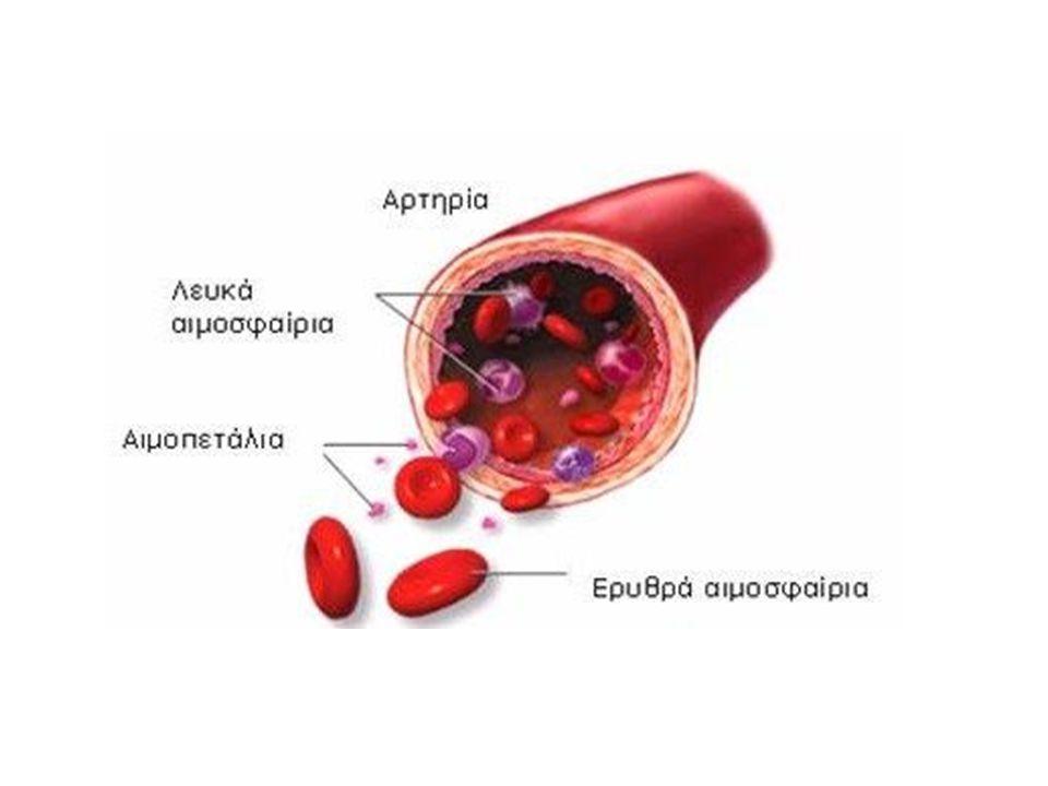 Υποτροπή λευχαιμίας Υποτροπή λευχαιμίας είναι η επανεμφάνιση της λευχαιμίας μετά τη θεραπεία.