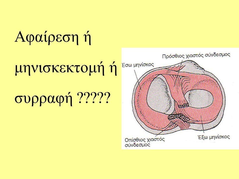 Αφαίρεση ή μηνισκεκτομή ή συρραφή ?????