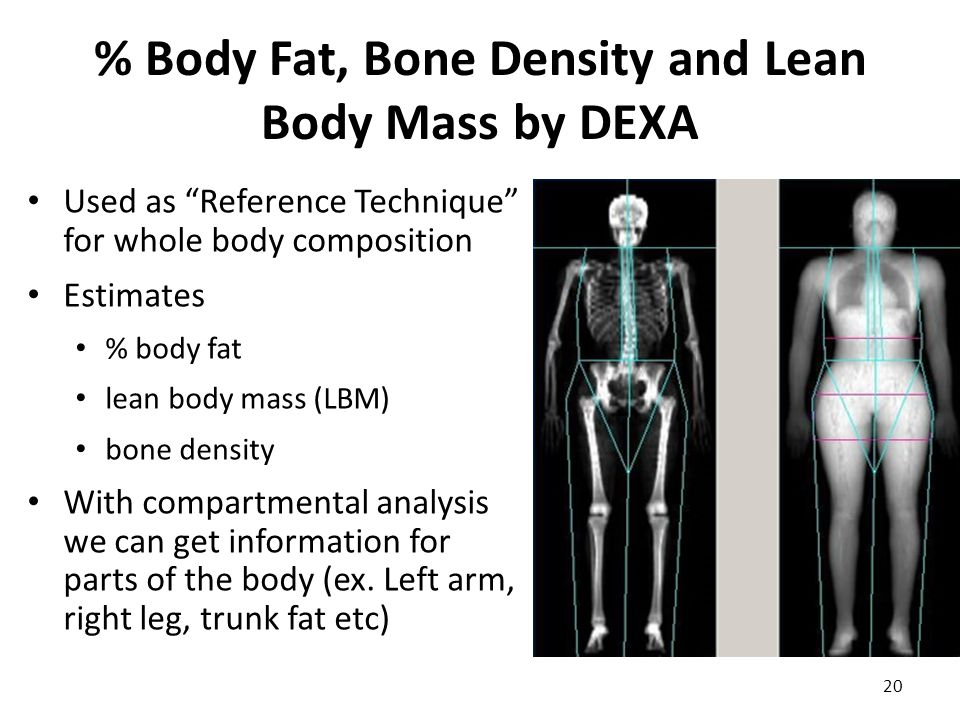 "% Body Fat, Bone Density and Lean Body Mass by DEXA Used as ""Reference Technique"" for whole body composition Estimates % body fat lean body mass (LBM)"