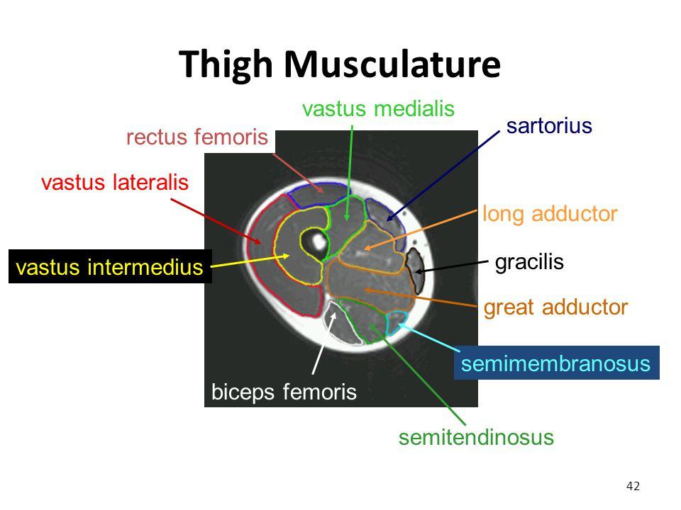 Thigh Musculature 42 vastus lateralis vastus intermedius rectus femoris vastus medialis biceps femoris semitendinosus semimembranosus gracilis sartorius long adductor great adductor