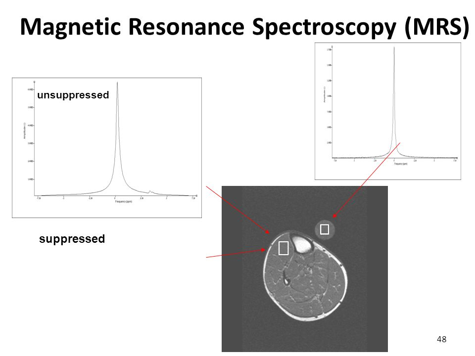 Magnetic Resonance Spectroscopy (MRS) 48 suppressed unsuppressed