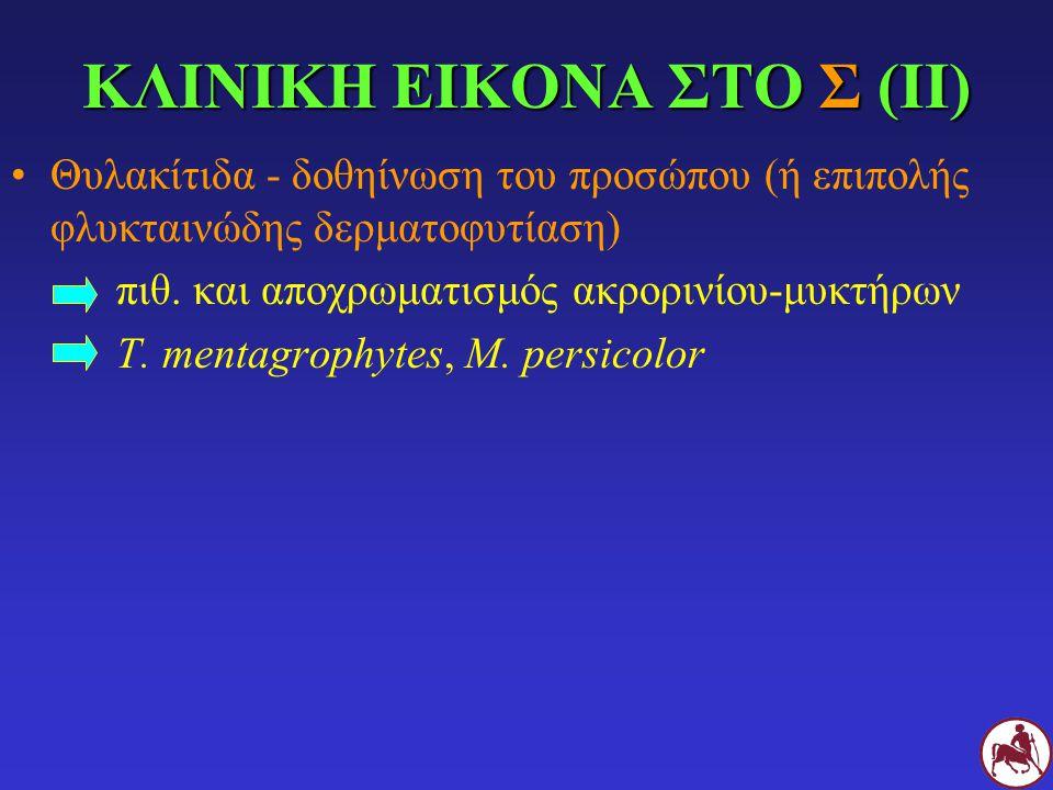 ΚΛΙΝΙΚΗ ΕΙΚΟΝΑ ΣΤΟ Σ (ΙΙ) Θυλακίτιδα - δοθηίνωση του προσώπου (ή επιπολής φλυκταινώδης δερματοφυτίαση) πιθ. και αποχρωματισμός ακρορινίου-μυκτήρων T.