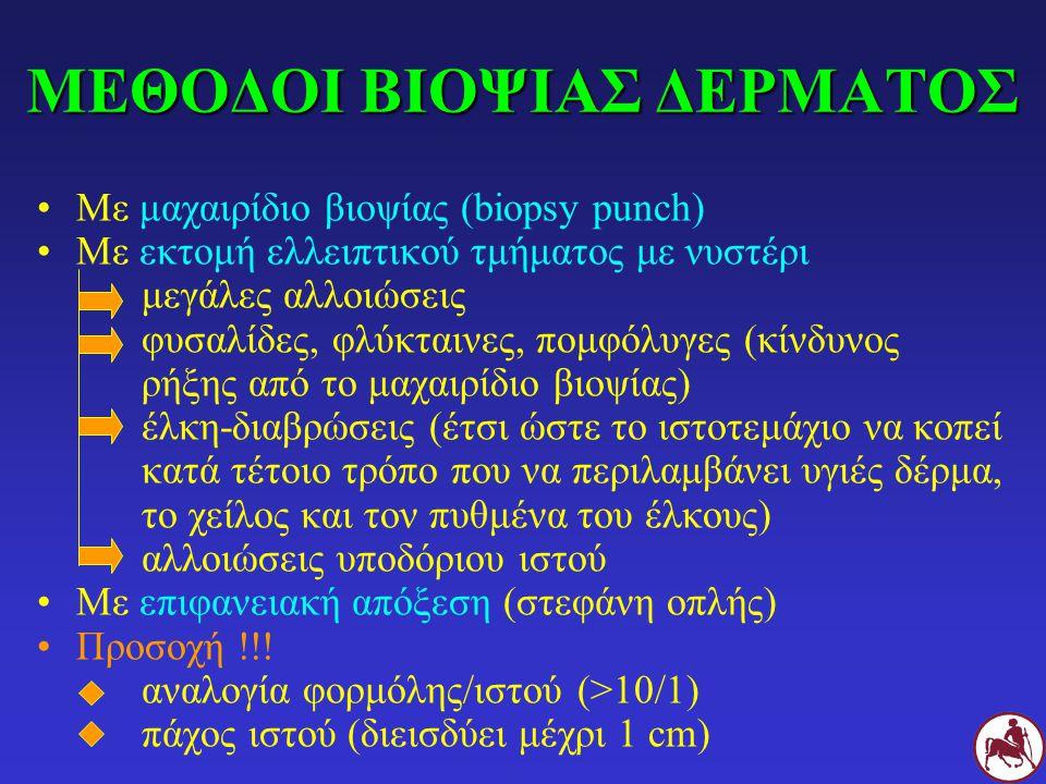 ΜΕΘΟΔΟΙ ΒΙΟΨΙΑΣ ΔΕΡΜΑΤΟΣ Με μαχαιρίδιο βιοψίας (biopsy punch) Με εκτομή ελλειπτικού τμήματος με νυστέρι μεγάλες αλλοιώσεις φυσαλίδες, φλύκταινες, πομφ