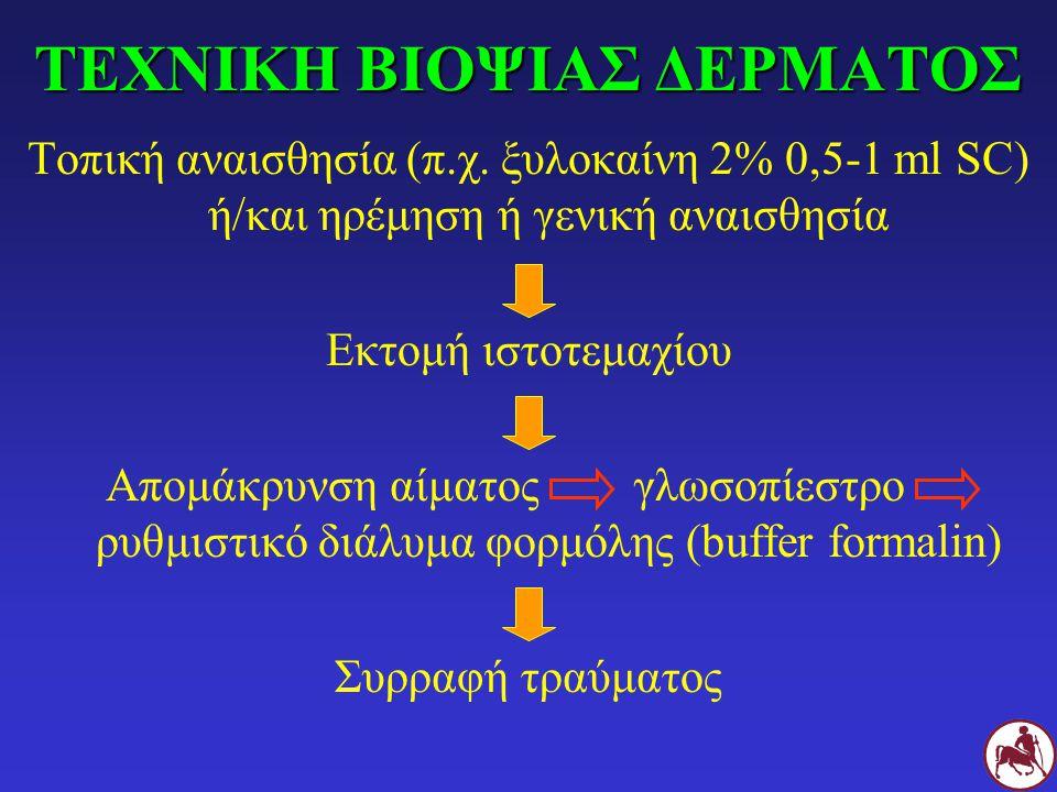 ΤΕΧΝΙΚΗ ΒΙΟΨΙΑΣ ΔΕΡΜΑΤΟΣ Τοπική αναισθησία (π.χ. ξυλοκαίνη 2% 0,5-1 ml SC) ή/και ηρέμηση ή γενική αναισθησία Εκτομή ιστοτεμαχίου Απομάκρυνση αίματοςγλ