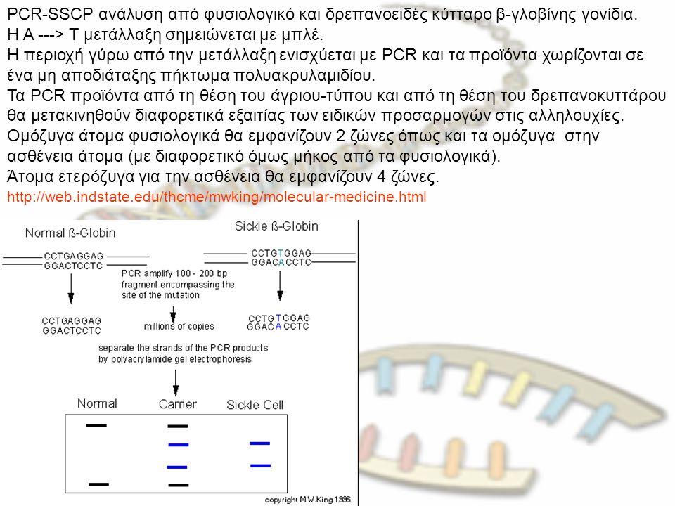 PCR-SSCP ανάλυση από φυσιολογικό και δρεπανοειδές κύτταρο β-γλοβίνης γονίδια. Η A ---> T μετάλλαξη σημειώνεται με μπλέ. Η περιοχή γύρω από την μετάλλα