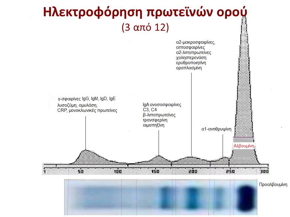 Ηλεκτροφόρηση πρωτεϊνών ορού (3 από 12)