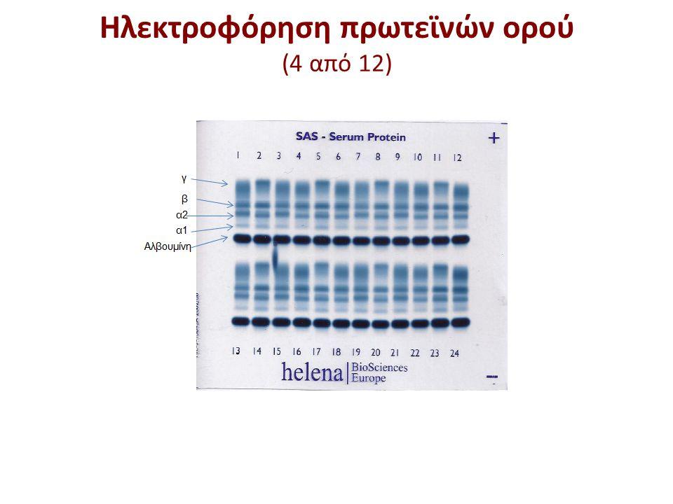 Ηλεκτροφόρηση πρωτεϊνών ορού (4 από 12)