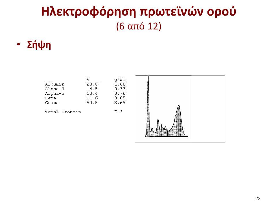 Ηλεκτροφόρηση πρωτεϊνών ορού (6 από 12) Σήψη 22