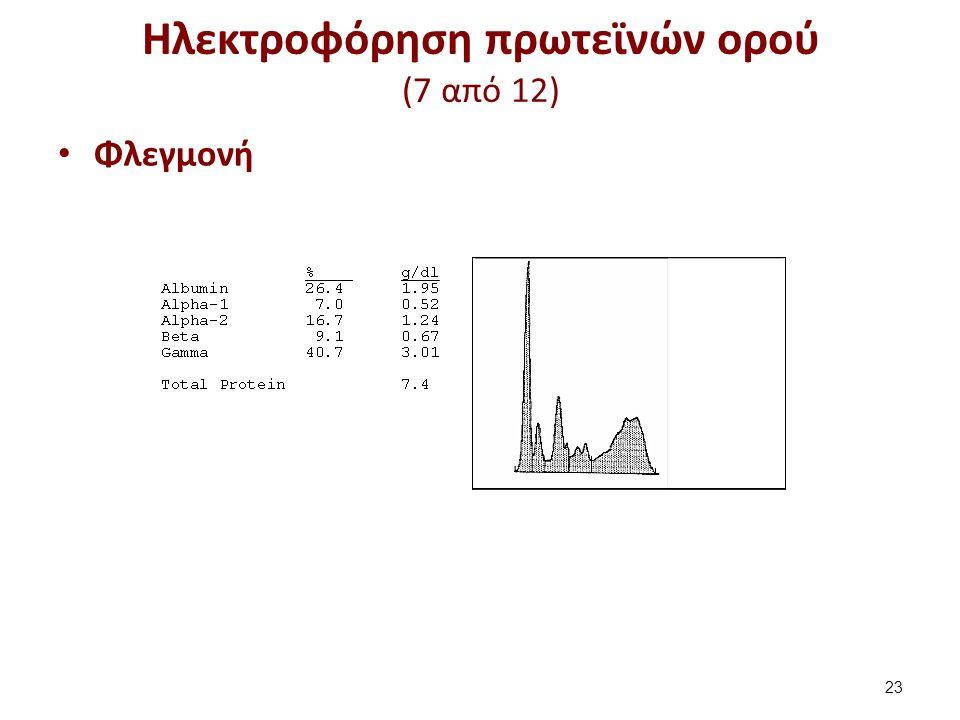 Ηλεκτροφόρηση πρωτεϊνών ορού (7 από 12) Φλεγμονή 23