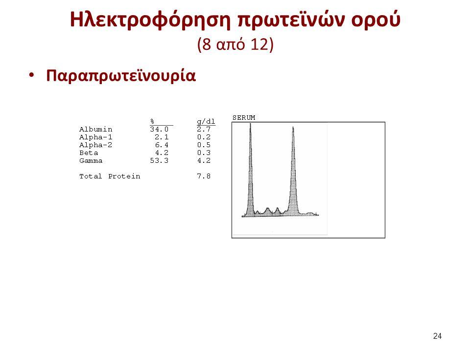 Ηλεκτροφόρηση πρωτεϊνών ορού (8 από 12) Παραπρωτεϊνουρία 24