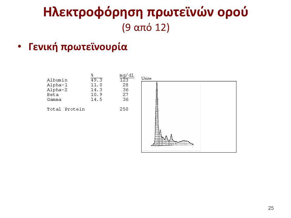Ηλεκτροφόρηση πρωτεϊνών ορού (9 από 12) Γενική πρωτεϊνουρία 25