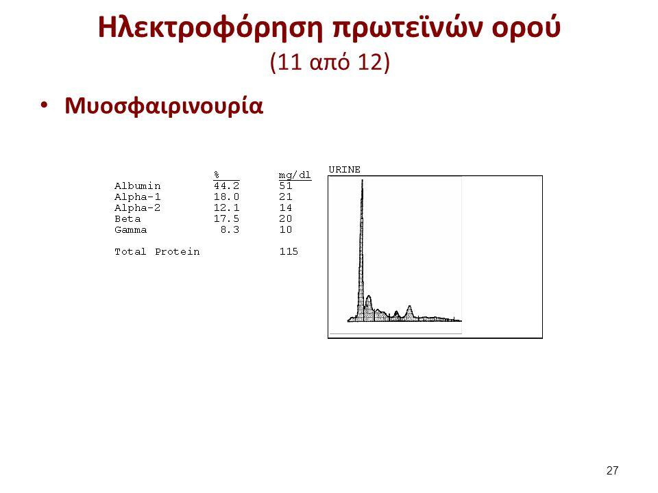 Ηλεκτροφόρηση πρωτεϊνών ορού (11 από 12) Μυοσφαιρινουρία 27