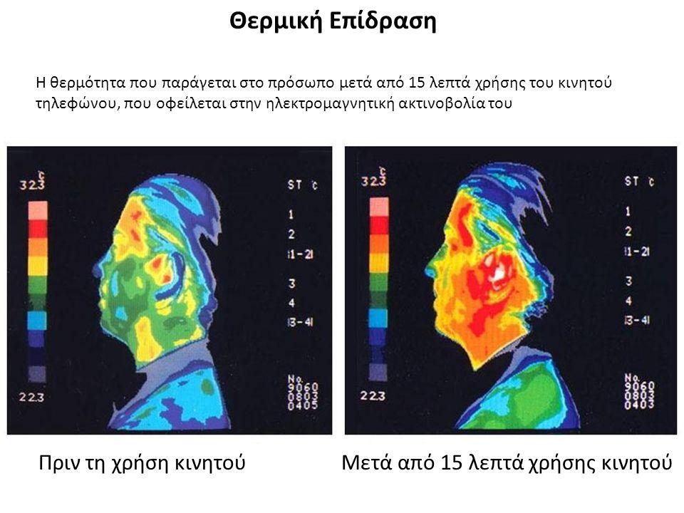 Θερμική Επίδραση Η θερμότητα που παράγεται στο πρόσωπο μετά από 15 λεπτά χρήσης του κινητού τηλεφώνου, που οφείλεται στην ηλεκτρομαγνητική ακτινοβολία