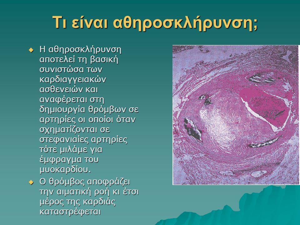 Τι είναι αθηροσκλήρυνση;  Η αθηροσκλήρυνση αποτελεί τη βασική συνιστώσα των καρδιαγγειακών ασθενειών και αναφέρεται στη δημιουργία θρόμβων σε αρτηρίε