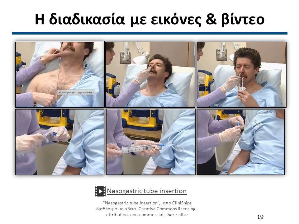 """Η διαδικασία με εικόνες & βίντεο Nasogastric tube insertion """"Nasogastric tube insertion"""", από CliniSnips διαθέσιμο με άδεια Creative Commons licensing"""