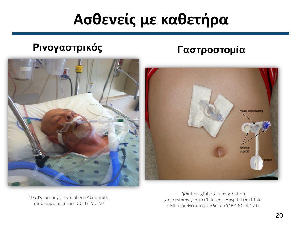 """Ασθενείς με καθετήρα """"Dad's Journey"""", από Sherri AbendrothDad's JourneySherri Abendroth διαθέσιμο με άδεια CC BY-ND 2.0CC BY-ND 2.0 """"gbutton gtube g-t"""