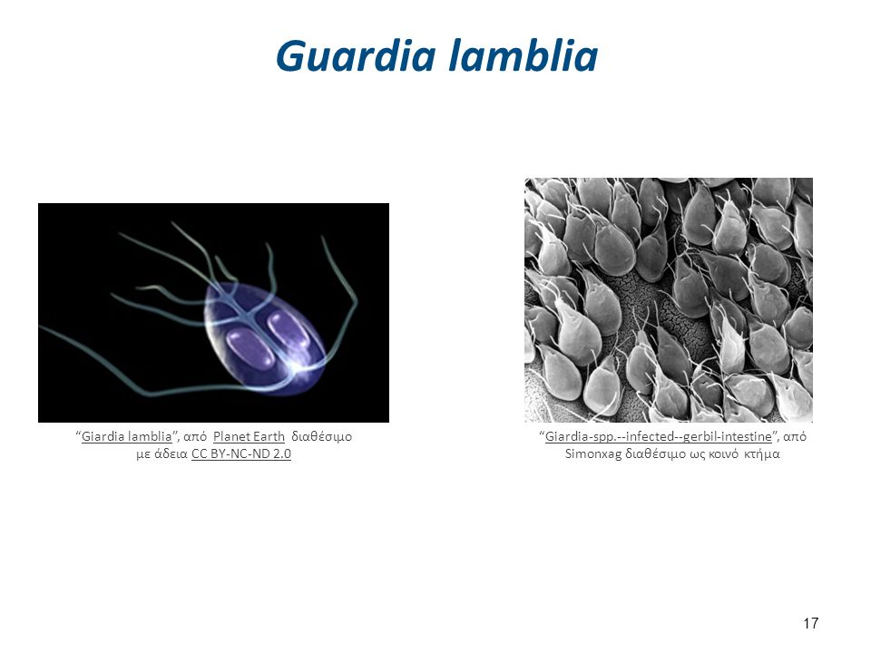 "Guardia lamblia 17 ""Giardia lamblia"", από Planet Earth διαθέσιμο με άδεια CC BY-NC-ND 2.0Giardia lambliaPlanet EarthCC BY-NC-ND 2.0 ""Giardia-spp.--inf"