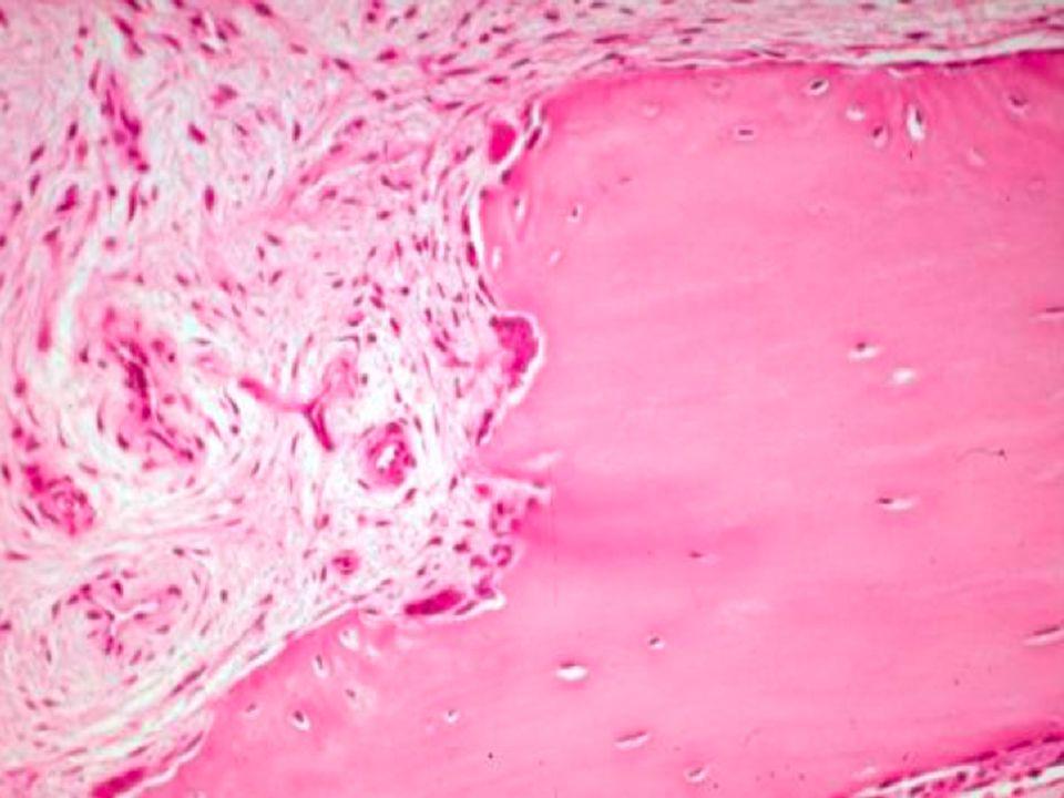 Νεφρική Οστεοδυστροφία Μορφές και επίπτωσή τους Παθογένεια Κλινική εικόνα Φαρμακευτική αγωγή Παραθυρεοειδεκτομή