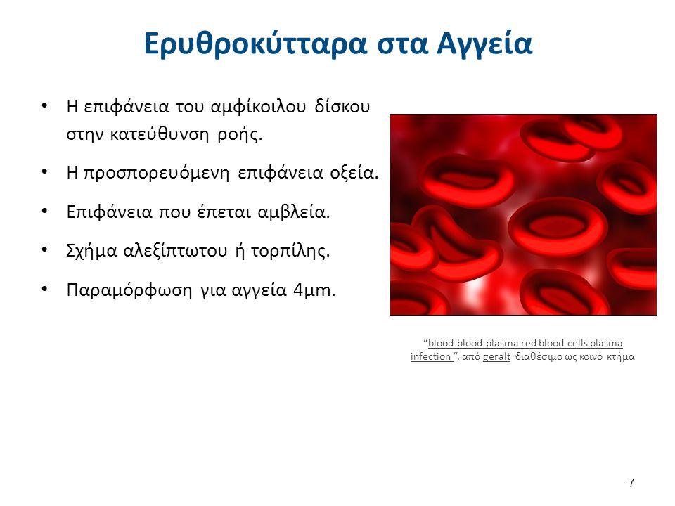 Η επιφάνεια του αμφίκοιλου δίσκου στην κατεύθυνση ροής. Η προσπορευόμενη επιφάνεια οξεία. Επιφάνεια που έπεται αμβλεία. Σχήμα αλεξίπτωτου ή τορπίλης.