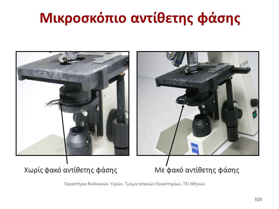 Μικροσκόπιο αντίθετης φάσης Χωρίς φακό αντίθετης φάσης Με φακό αντίθετης φάσης 101 Εργαστήριο Βιολογικών Υγρών, Τμήμα Ιατρικών Εργαστηρίων, ΤΕΙ Αθηνών