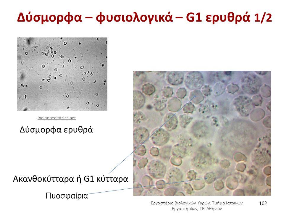 Δύσμορφα – φυσιολογικά – G1 ερυθρά 1/2 102 Δύσμορφα ερυθρά Ακανθοκύτταρα ή G1 κύτταρα indianpediatrics.net Πυοσφαίρια Εργαστήριο Βιολογικών Υγρών, Τμή