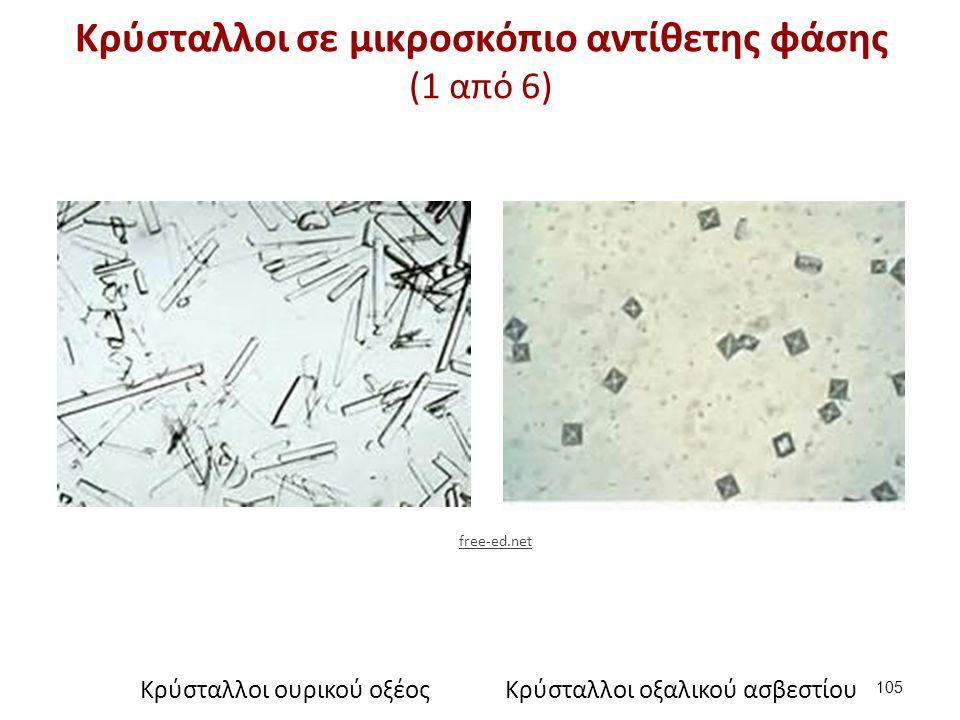 Κρύσταλλοι σε μικροσκόπιο αντίθετης φάσης (1 από 6) 105 Κρύσταλλοι ουρικού οξέοςΚρύσταλλοι οξαλικού ασβεστίου free-ed.net