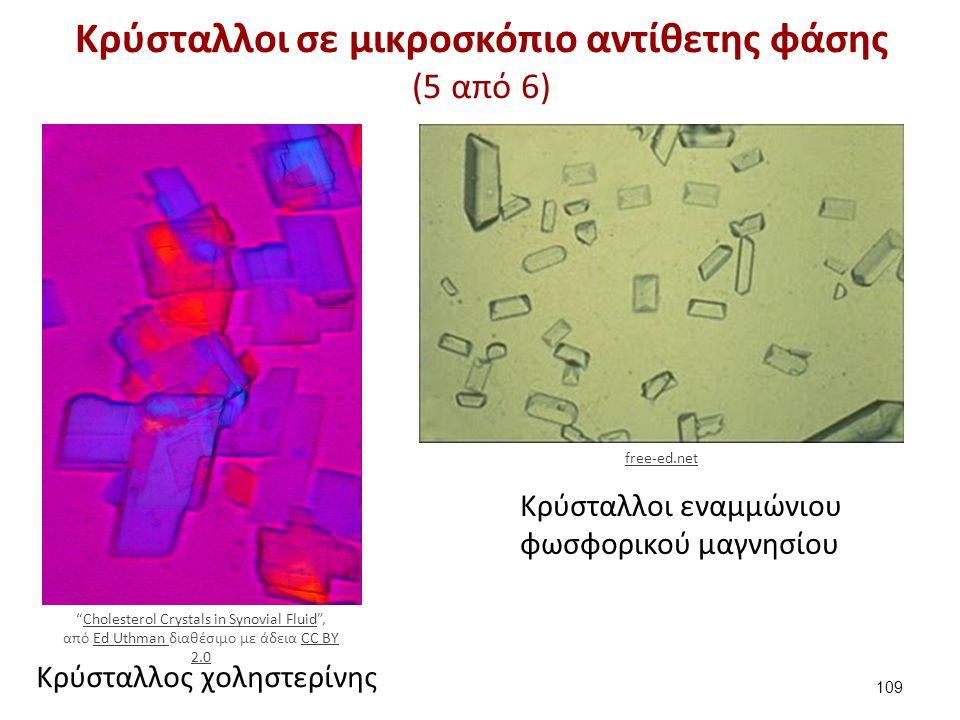 """Κρύσταλλος χοληστερίνης Κρύσταλλοι εναμμώνιου φωσφορικού μαγνησίου Κρύσταλλοι σε μικροσκόπιο αντίθετης φάσης (5 από 6) 109 """"Cholesterol Crystals in Sy"""