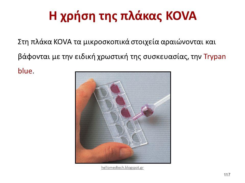 Η χρήση της πλάκας KOVA Στη πλάκα KOVA τα μικροσκοπικά στοιχεία αραιώνονται και βάφονται με την ειδική χρωστική της συσκευασίας, την Trypan blue. 117