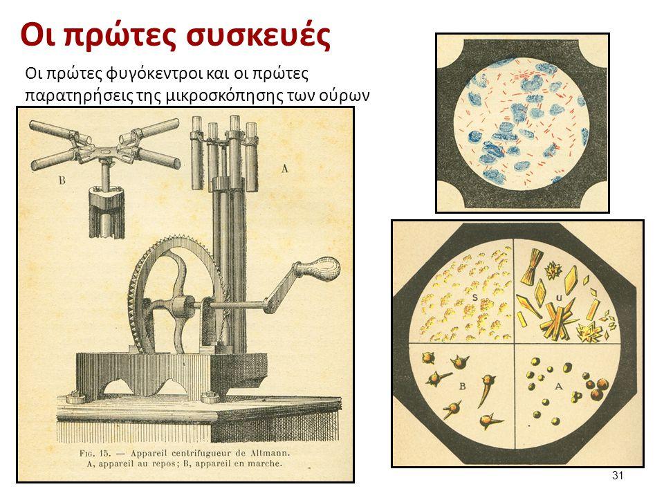 Οι πρώτες συσκευές Οι πρώτες φυγόκεντροι και οι πρώτες παρατηρήσεις της μικροσκόπησης των ούρων 31