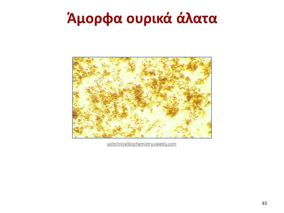Άμορφα ουρικά άλατα 49 uoitclinicalbiochemistry.weebly.com